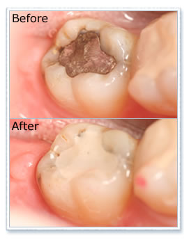 Before and after cosmetic white filling treatment