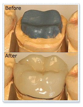 Before and after crown treatment