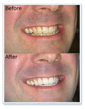 Tooth Whitening Hall Green Dental Practice In Upholland Near Wigan