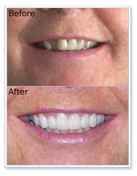 Before and after veneer treatment